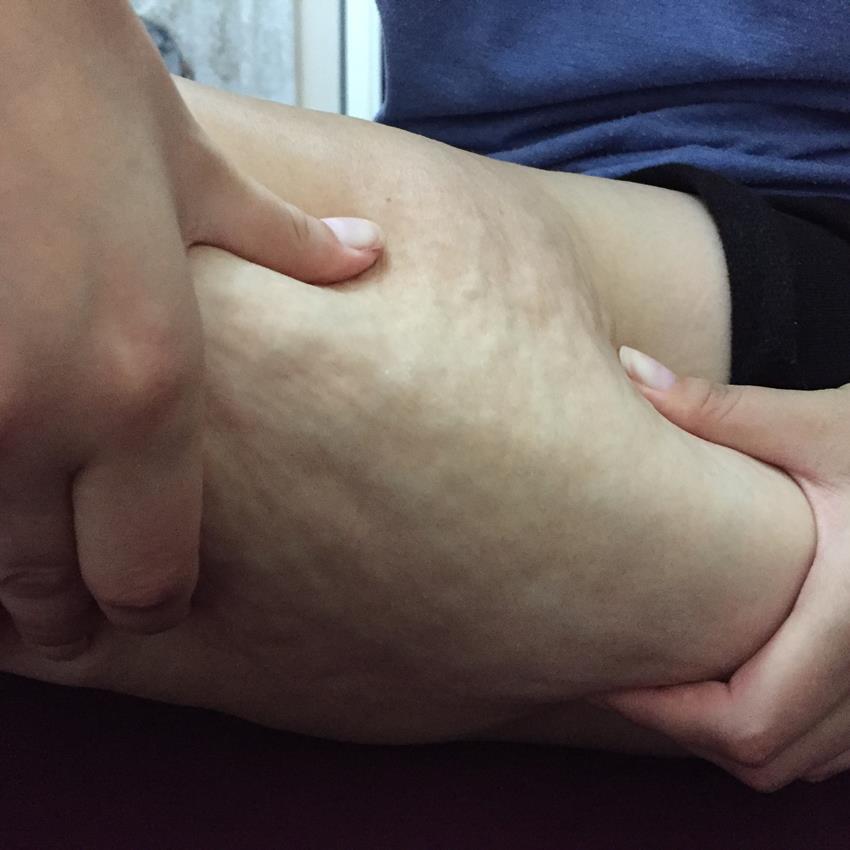 Îndepărtați celulita de pe picioare și fese: primele 7 metode de casă și salon - Bataturi